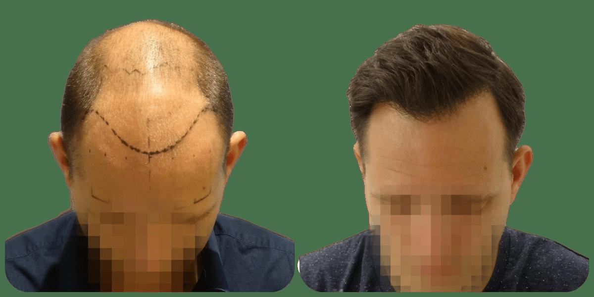 haartransplantatie resultaten
